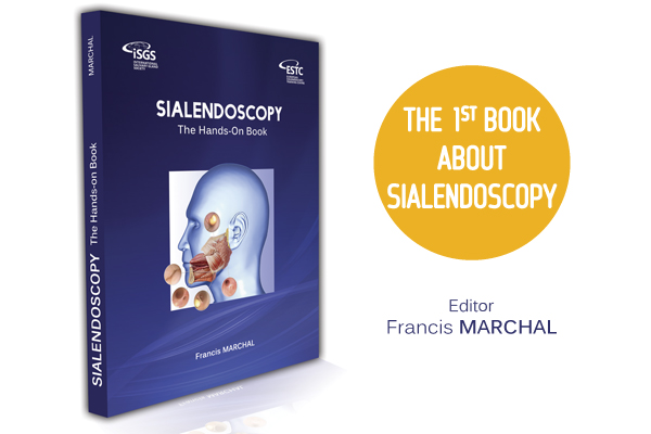 sialendoscopy hands-on book